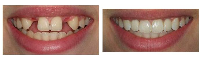 original implant before and after photo