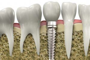 implants-1200x899